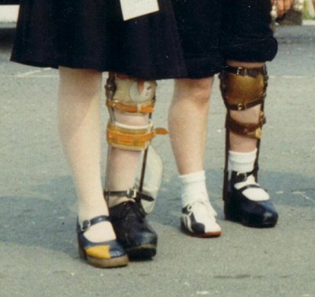 Leg Brace GirlsCopy1