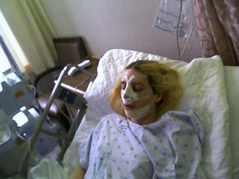 Trinity Rose After Facial Feminization Surgery Dr Douglas Ousterhout