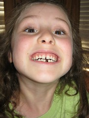 Missing Teeth and Bite Marks
