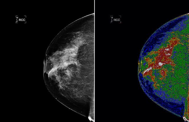 mamogram light technology
