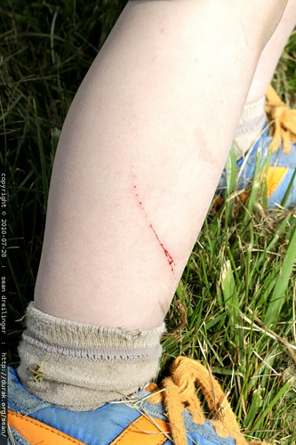 sequoia scratched his leg on a blackberry bush