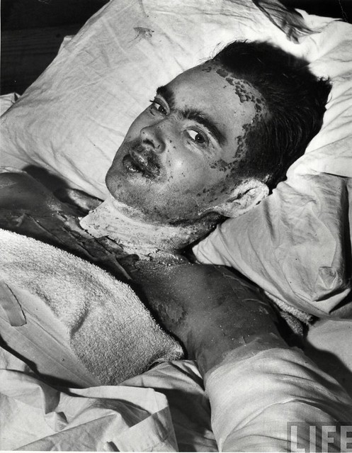 Burn victim, Allied Hdqrs, In Africa, by Margaret Bourke-White 1943