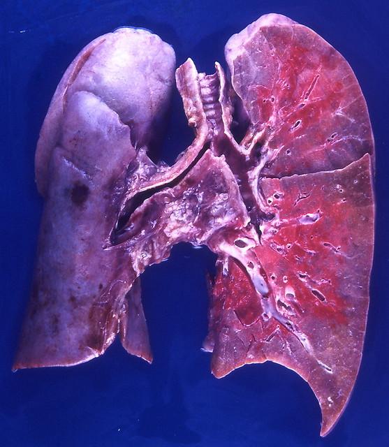 Influenza Pneumonia Flickr Photo Sharing
