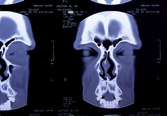 radiography, medical radiography, x-ray, font, illustration, medical imaging, bone, radiology,