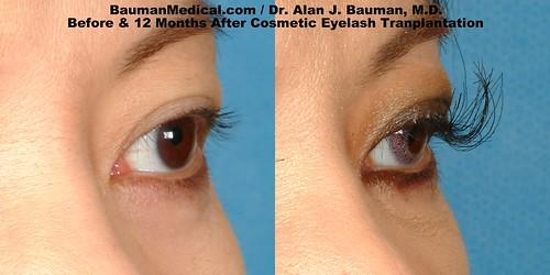 eyelash-transplant4_DrAlanBauman