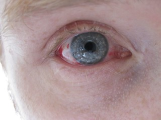 Corneal Transplant for Keratoconus, 11 days post-op - Photo: jACK TWO (CC BY-NC-ND), on Flickr