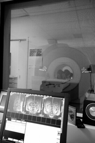 Wide Open Bore MRI