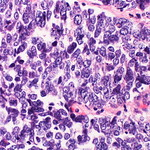 Large cell neuroendocrine carcinoma