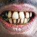 Man with Periodontitis in Dhaka Housing Slum