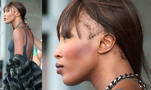 Alopecia Hair Styles: Naomi Campbell Has Traction Alopeica 2