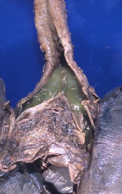 Header of bronchial