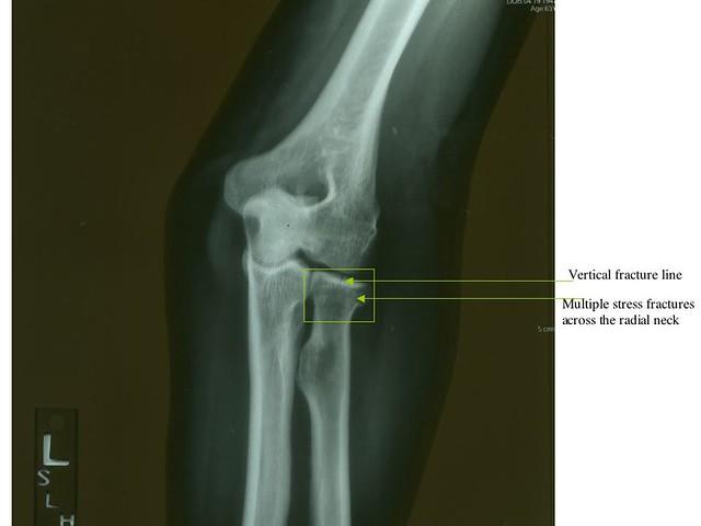 left elbow x ray -#main