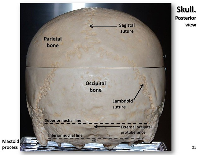 Skull  Posterior View With Labels - Axial Skeleton Visual Atlas  Page 21