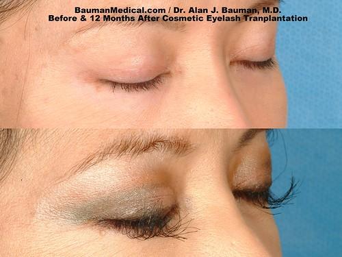 eyelash-transplant_b a_DrAlanBauman