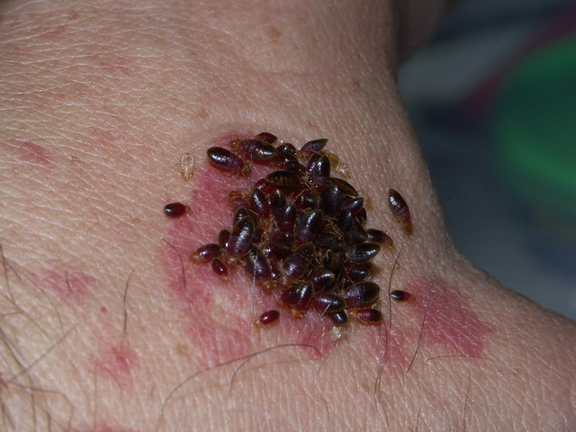 Various bed bug nymphs and adults
