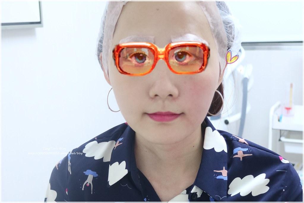 Fotona4美塑光波拉提雷射 (6)