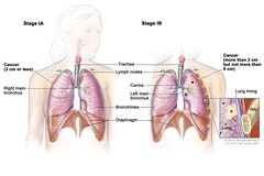 A new treatment for lung cancer has been approved
