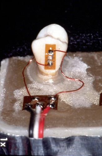 January 26, 2017 - 6:20pm - Here, two EA-06-015EH-120 strain gages are installed on a dental implant.  Though two gages are used on opposite sides, this installation is not a half-bridge.  Instead, the two gages are wired in series as a quarter-bridge.  This arrangement provides automatic sensitivity only to the axial strain, while cancelling unwanted strains due to bending.  Self-temperature-compensation number (STC) was not critical since temperature changes did not occur during the course of the strain measurements.