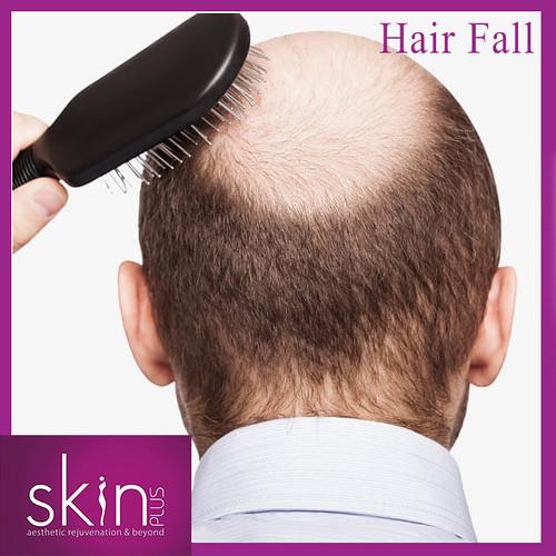 insta hair fall