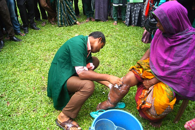 an introduction to filariasis more commonly known as elephantiasis Lymphatic filariasis (lf), commonly known as elephantiasis, is a disfiguring lymphatic filariasis (lf), commonly known as learn more about your.