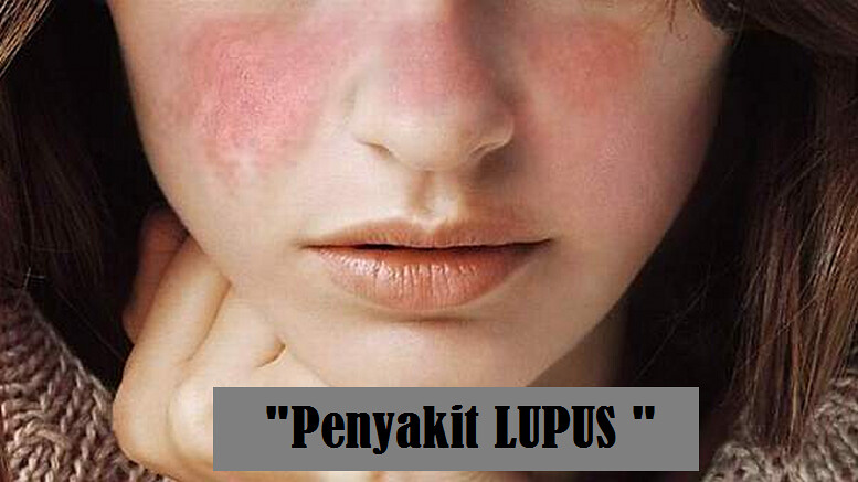 Obat Yang Dapat Menyembuhkan Penyakit Lupus Dengan Cepat