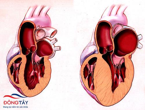 Điều trị bệnh cơ tim giãn