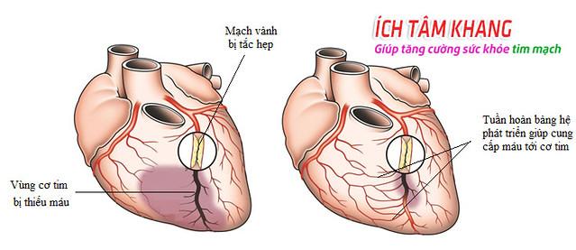 Tuần hoàn bàng hệ thay thế nhiệm vụ của động mạch chính, giúp cung cấp máu tới nuôi tim