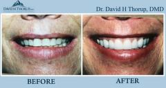 General Dentistry Sandy UT