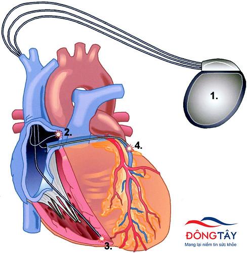Thiết bị CRT được cấy ghép vào tim trong liệu pháp tái đồng bộ tim