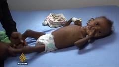 UN raises famine alarm in Yemen (1)