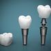 Dental implants (photo by depositphotos)