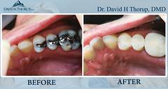 Family Dentistry Sandy UT
