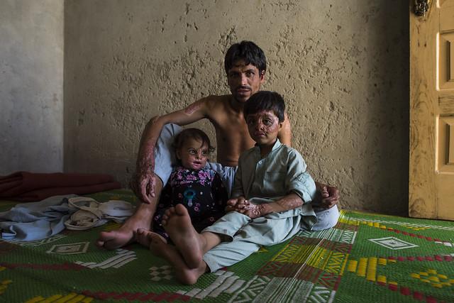 afghanistannangarharjalalabadircinternationalrescuecom jalalabad nangarhar afghanistan afg afghanistannangarharjalalabadircinternationalrescuecommitteefamilyreturneereturneespakistaniomunhcrrefugeerefugeesmigrantsmigrationburnburnshealth