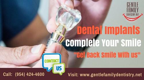 Same Day Dental Implant Treatment in Plantation