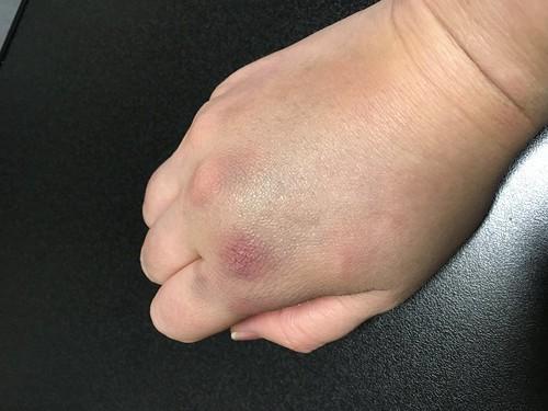 手も腫れた