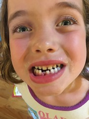 Guess who's coming tonight!  She let me do the floss thing. #finally. #waitingforthetoothfairy #toothfairyiscomingtonight #loosetooth #bravegirl