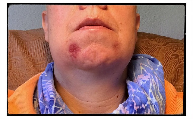 My chin is pretty swollen, particularly on the left side.