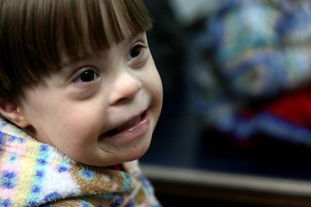 Texto visagarantir que os pais estejam mais preparados para receber filhos com a síndrome  - Créditos: Roberto Ortega