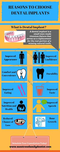 Reasons to Choose Dental Implants