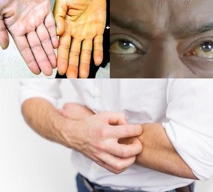 Obat Penyakit Kuning Pada Orang Dewasa