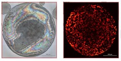 2d-health posted a photo:	Raman Map of graphene oxide on cancer cell spheroid. Credit: Cyrill Bussy