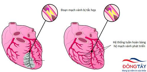 Tuần hoàn bàng hệ phát triển, giúp đưa máu tới nuôi tim khi mạch vành bị tắc hẹp nặng