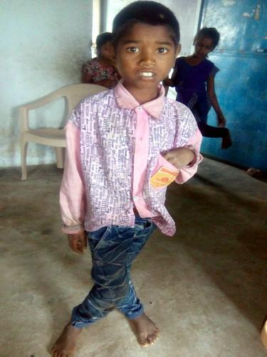 स्केलेटल फ्लोरोसिस से पीड़ित बच्चा
