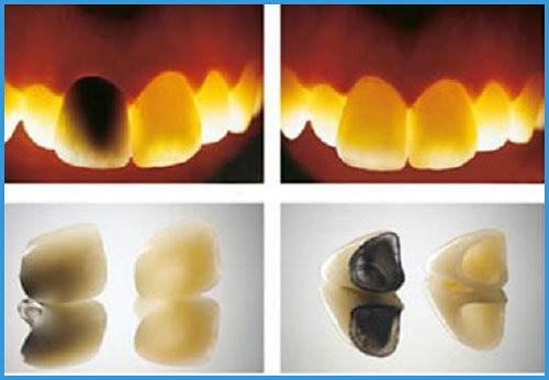 Bọc răng sứ kim loại bị đen viền nướu phải làm sao?