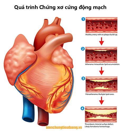 quá trình xơ cứng động mạch