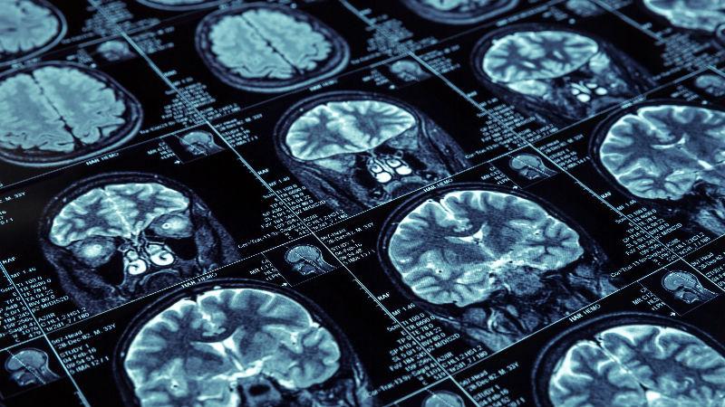 MRI scans of the brain