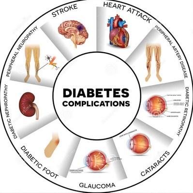 Komplikasi Penyakit Diabetes