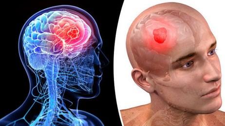 Delapan Gejala Dari Kanker Otak Yang Mematikan