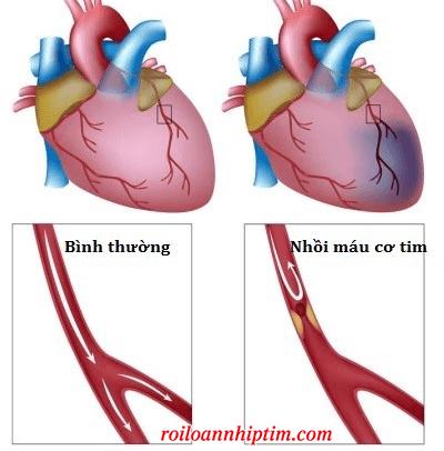 Những biến chứng thường gặp sau nhồi máu cơ tim cấp
