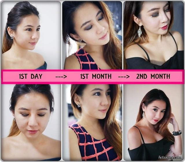Botox-Collage_